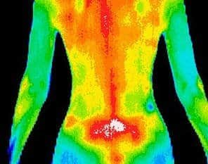 Thermography Body Scan